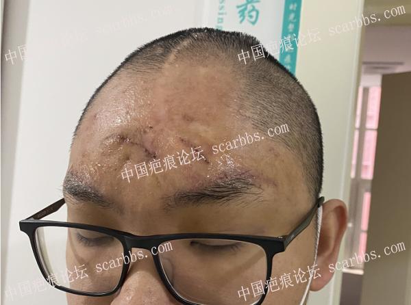 额部大面积色素痣三期治疗