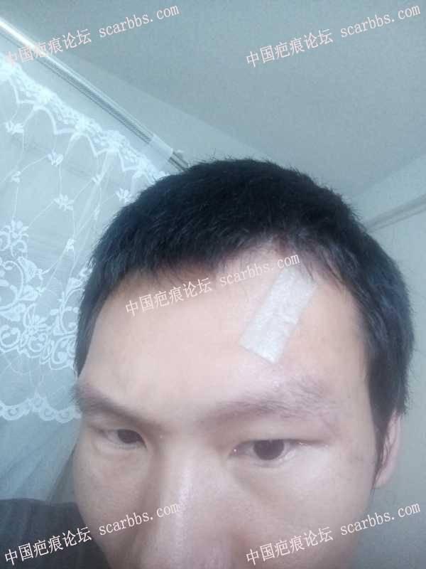 面部的凸凹形疤痕如何治疗