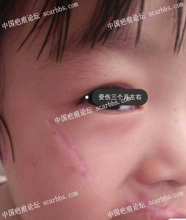 小美受伤到现在34个月了