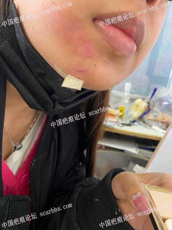 下巴处受伤第一天掉结痂,好担心凹陷,求求帮看看