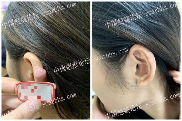 耳部疤痕疙瘩的祛除 效果如何