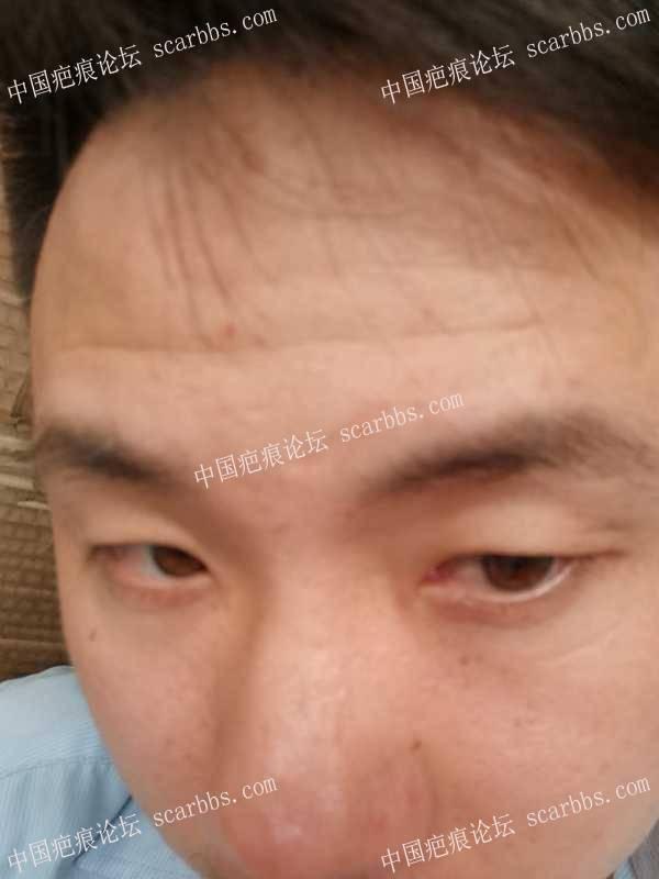 疤痕真的可以去除吗?