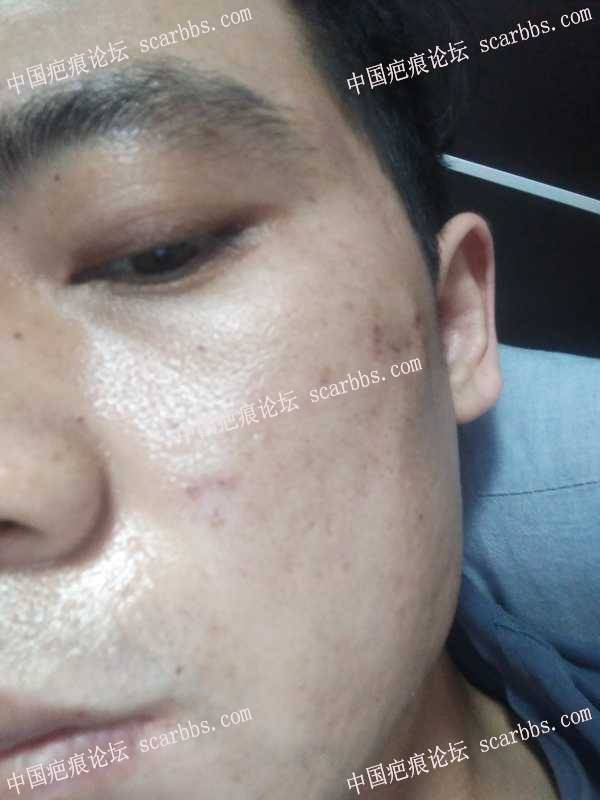 痘坑疤痕天津时光4月10面诊,当天治疗的