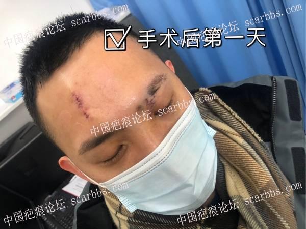 面部疤痕切缝后的第一百天,该如何护理,我好难。