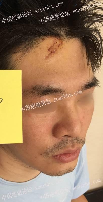 额部外伤,术后一年半复查,已经完全看不出来了!