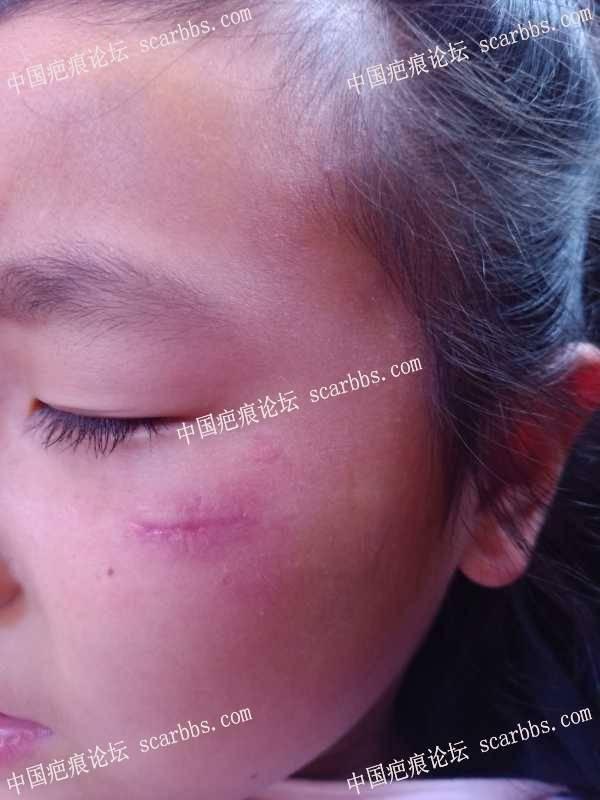 面部伤口拆线第9天,谁来帮帮我
