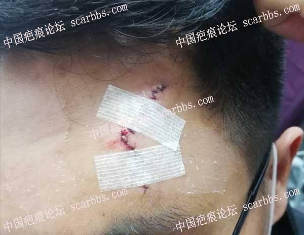 上海九院XXX专家2021.04.22手术