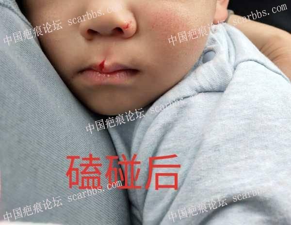 2岁多宝宝上嘴唇磕裂缝针,求后续护理?
