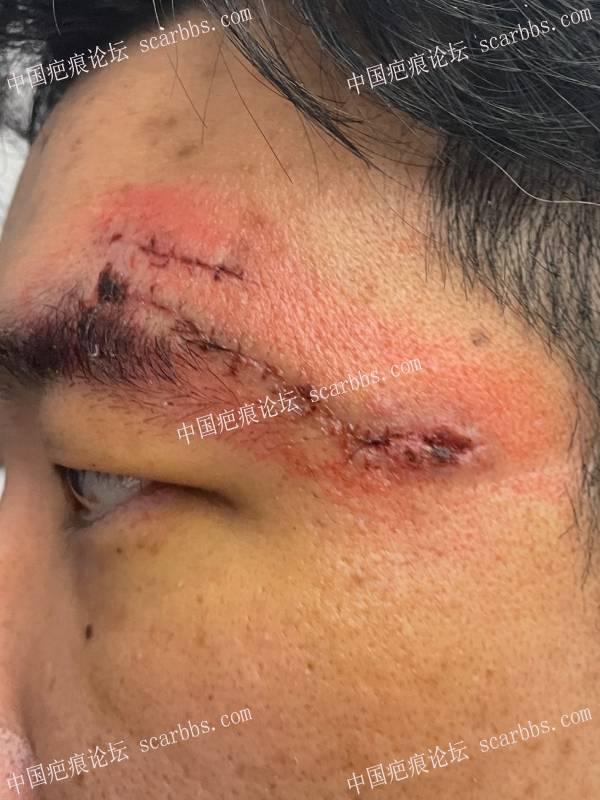 眉角的摔伤长疤痕怎么贴减张啊