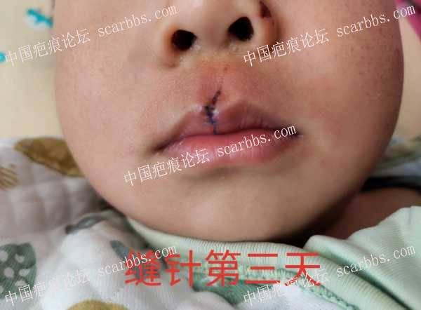 2岁宝宝,人中嘴唇磕碰,缝针脱落一针,怎么办?