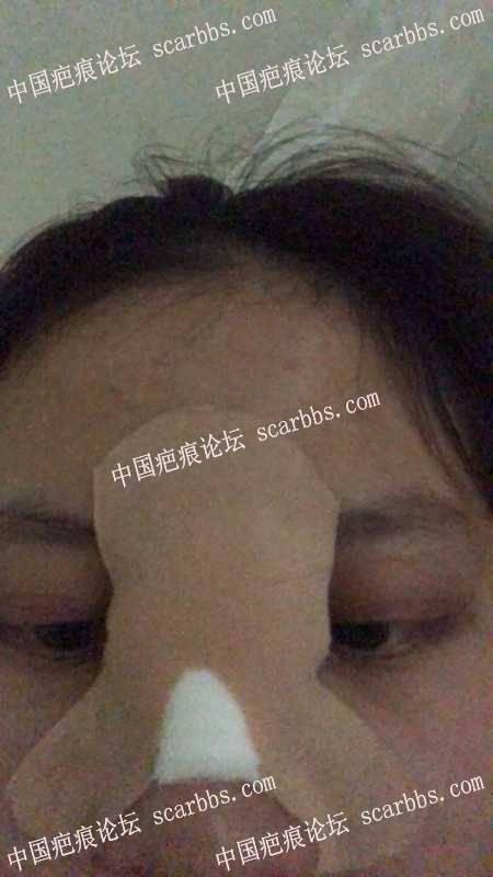 4.26鼻根部疤痕缝切手术日记