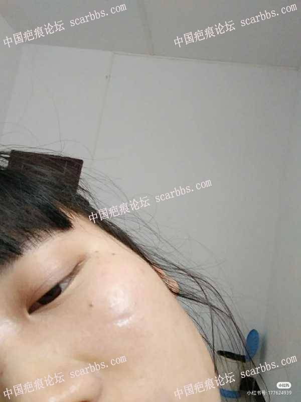 面部的凹陷疤痕切逢一个月零15天