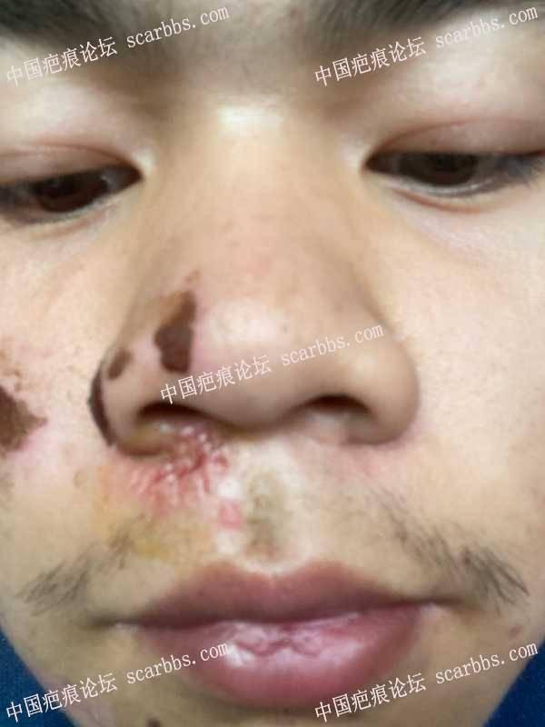 请问脸部摔伤后第一次换药就变成了