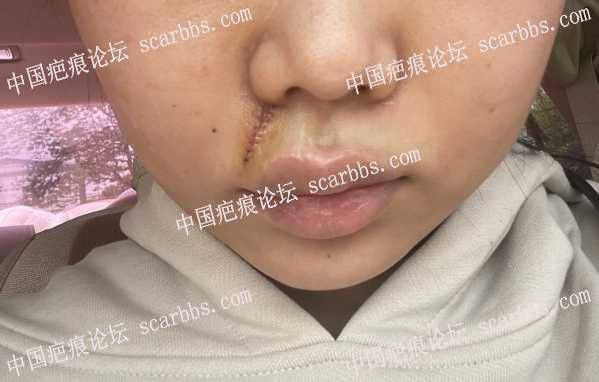 2021.4.26唇上方疤痕切除手术