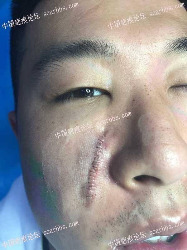 4月28号面部切缝手术