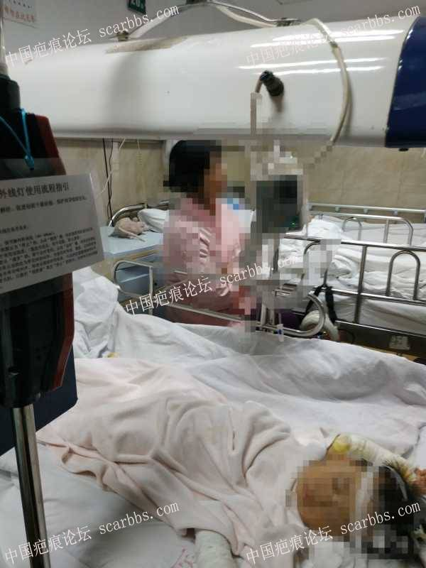 小孩烫伤3年,信息不多,希望或多或少能帮到有需要的人