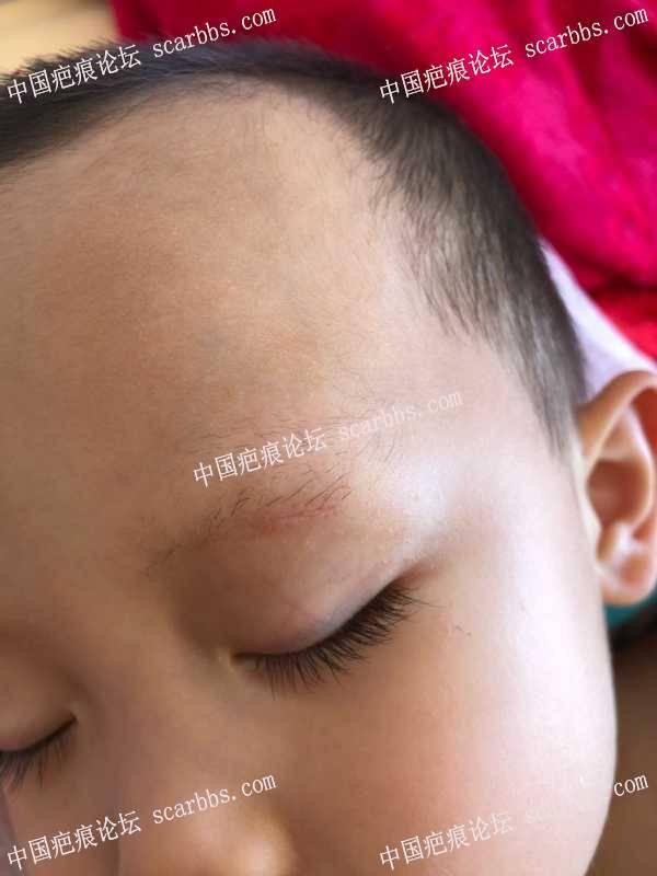 宝贝眉毛处磕伤26天了,还在护理中