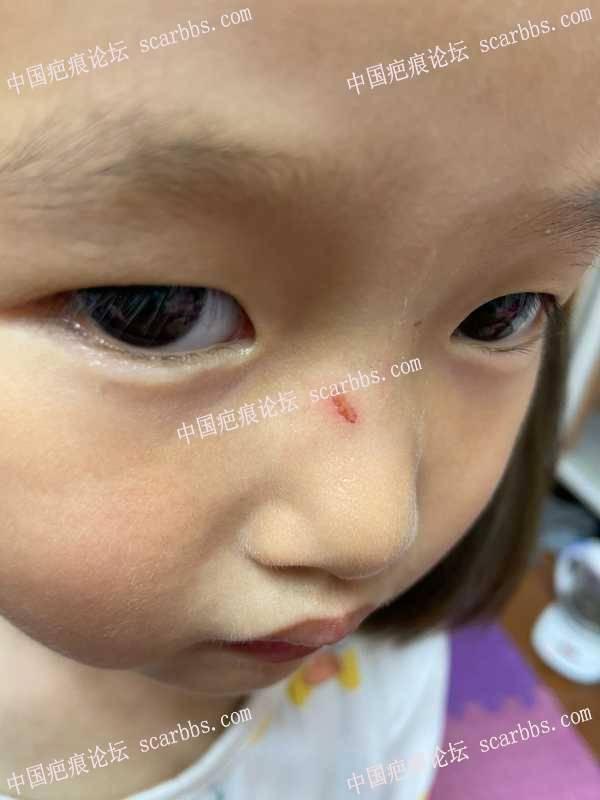 鼻子被指甲抓伤