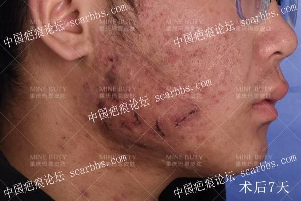 当疤痕疙瘩患者遇上痘痘怎么办!