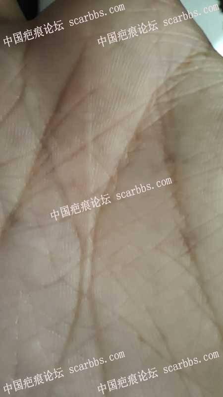 手掌上被剥橙器刮伤会不会留疤?