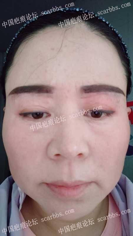 提眉凹陷疤痕怎么修复