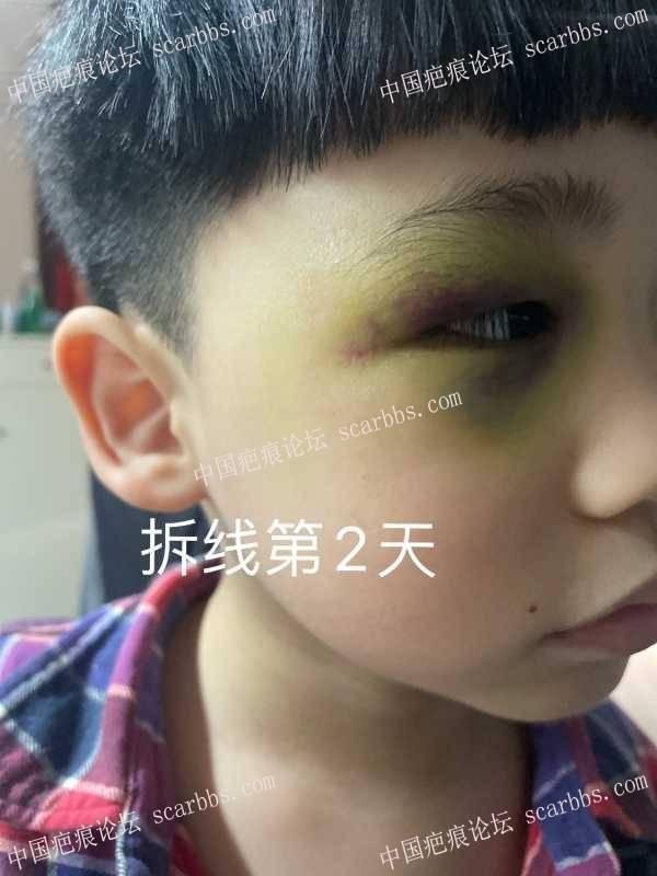 宝宝眼角缝针,目前拆线5天,请教一下用什么药,要不要贴减张