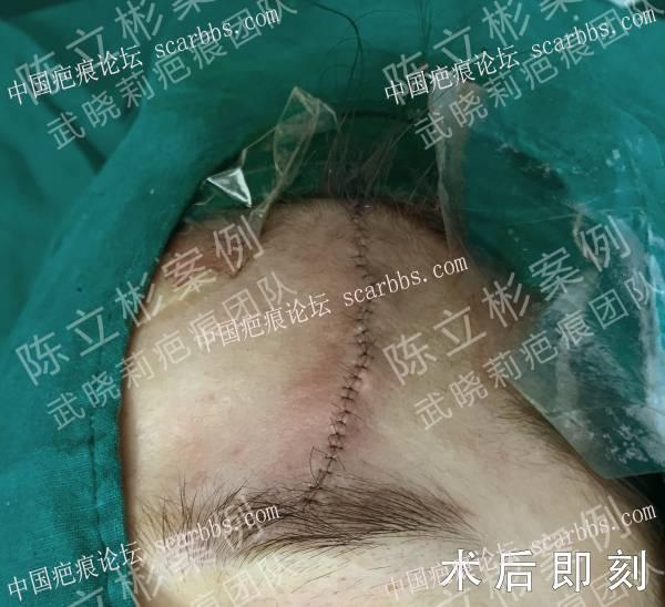 额部陈旧性疤痕术后3年随访记录
