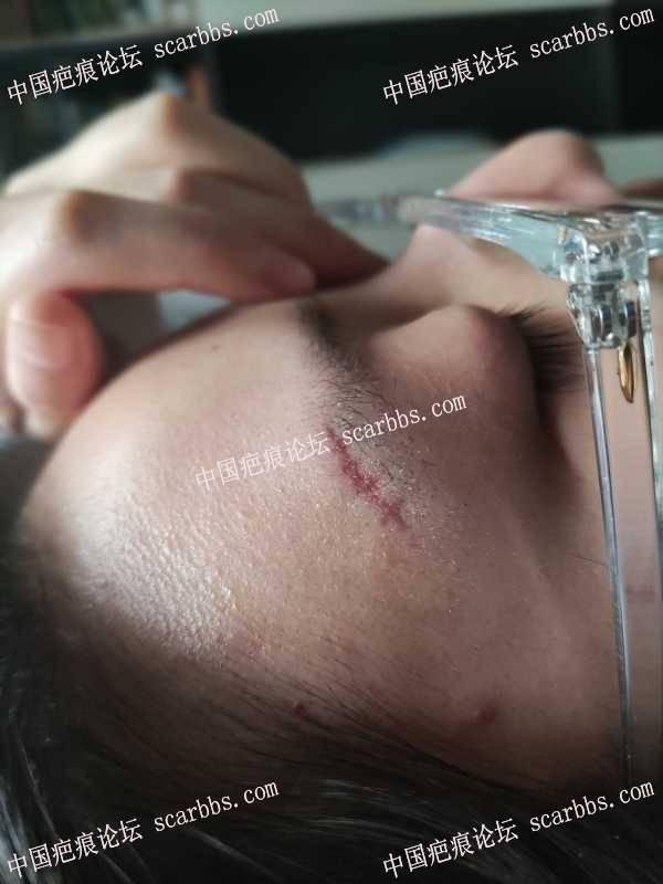 眉毛上边上的伤口第三天,疤痕属于凹的吗?推荐使用哪款祛疤膏?