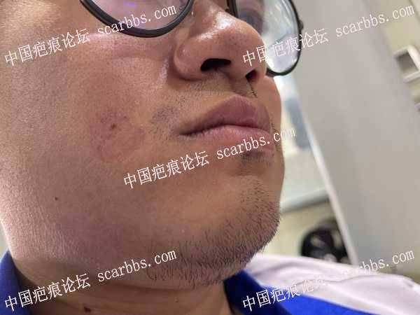 脸上的疤痕10多年了,不知道怎么处理好