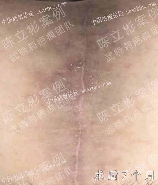 腹部增生性疤痕术后7个月治疗反馈