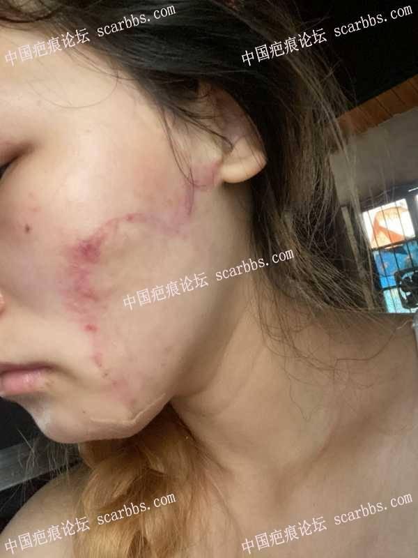 脸部疤痕做扩张器手术五个月