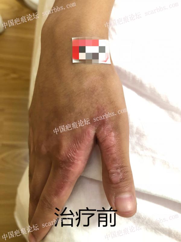 小女孩手部疤痕的恢复情况