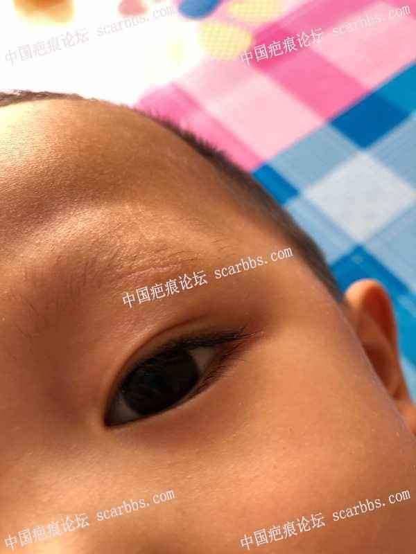 宝贝眉毛处疤痕40天了,到底怎么办?
