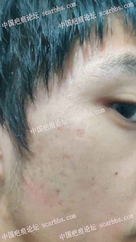 医生,这种药水点痣的凹陷疤痕怎么治疗?