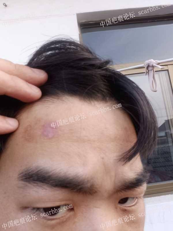 化学品灼伤两侧额头,有什么好办法改善