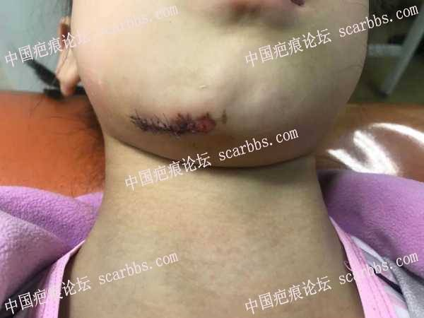 5月10日孩子下巴磕伤