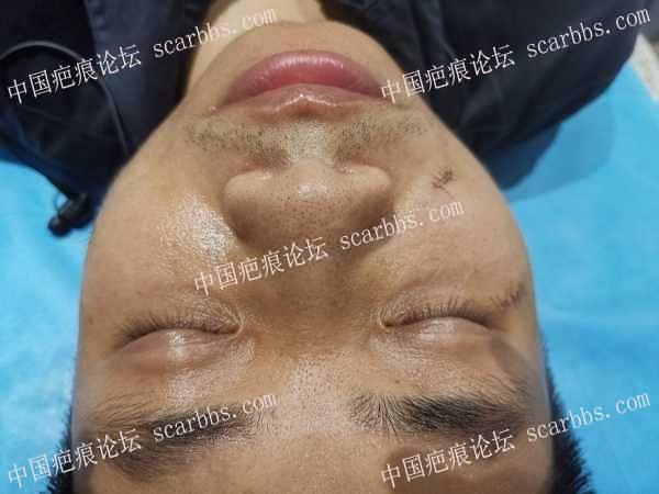 点痣凹陷疤痕,手术缝合治疗,持续更新贴
