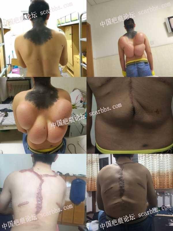颈背部大面积胎记在八大处做的组织扩张治疗,感觉选错了医生,后悔!