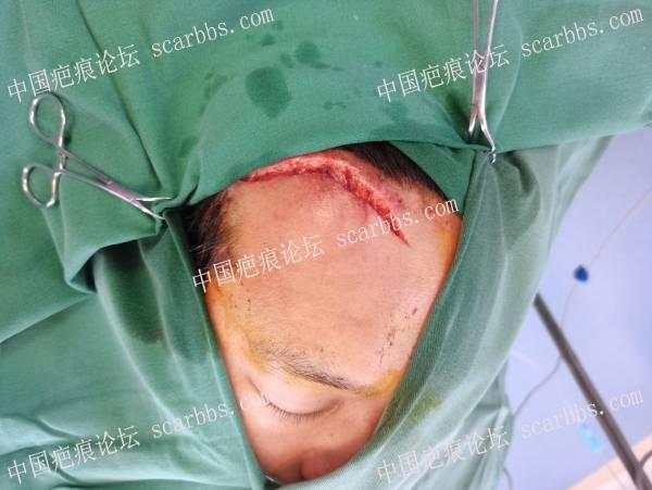 车祸外伤行显微修复术,术后1年毫无痕迹!选择对的医生很重要