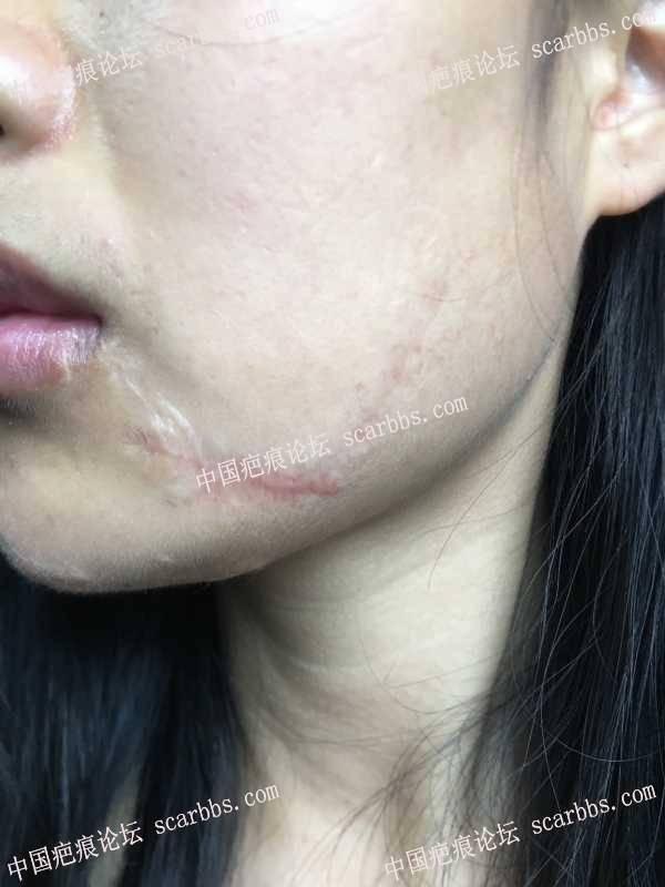 面部的车祸疤痕
