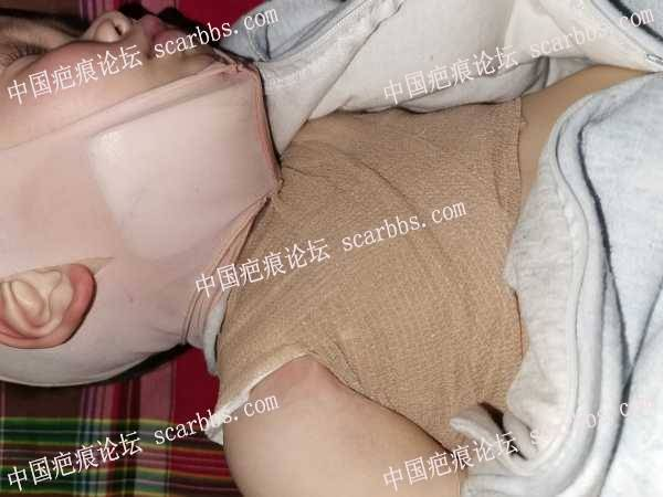 宝宝深二度烫伤植皮愈合后三个半月