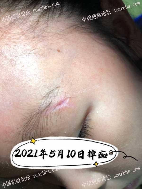 孩子磕伤目前疤痕无变化;请教护理经验!