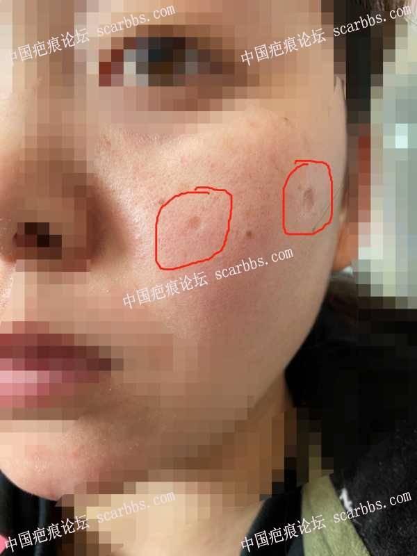 二十多年的面部点痣凹陷疤痕,今天终于圆梦切除了……