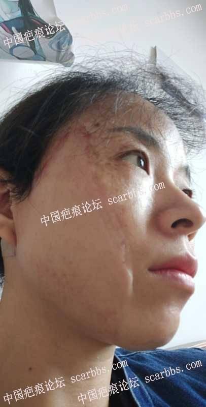 面部的血管瘤疤痕扩张器手术快五个月,长湿疹