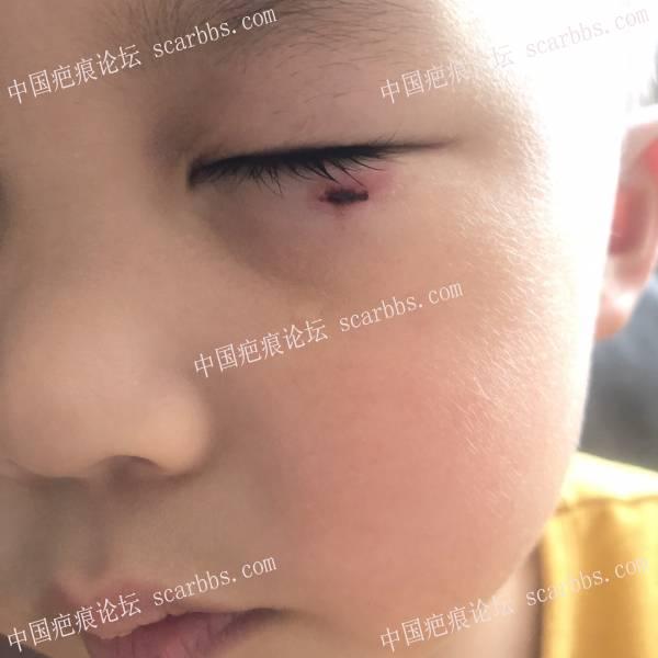 宝贝儿子眼下部磕破怎么防止疤痕