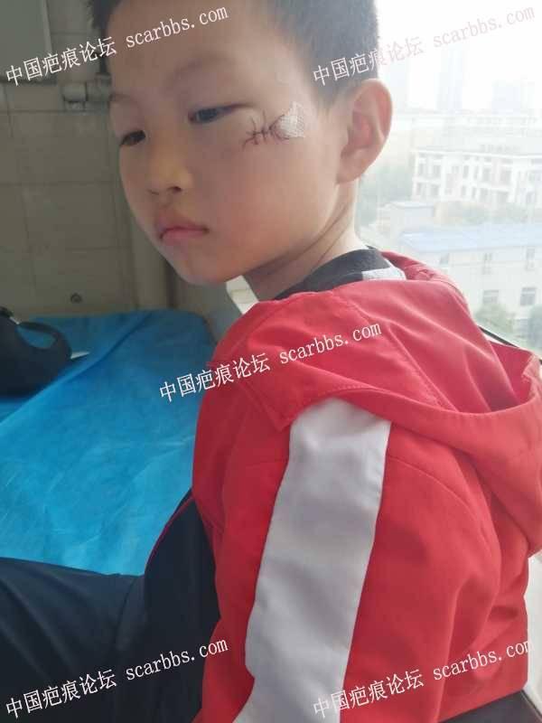 8岁儿童面部碰伤普通缝合护理求助