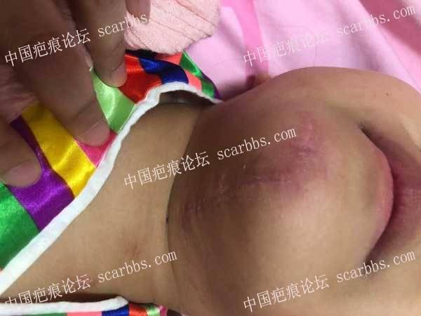 女儿3月20日受伤,现在疤痕增生,求助