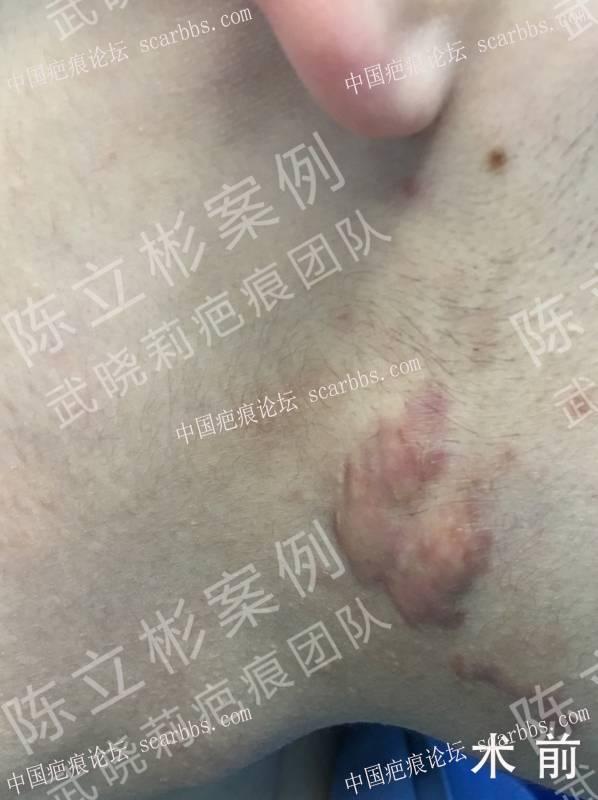 下颌疤痕疙瘩术后7个月随访记录