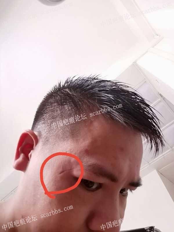 疤痕切除手术后三个月又裂开变凹陷怎么办?
