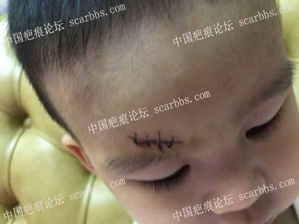 孩子额头磕伤,缝了4针,后期如何护理?